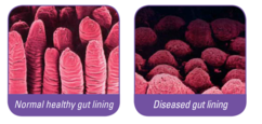 Image showing the microscopic impact of scour on gut lining