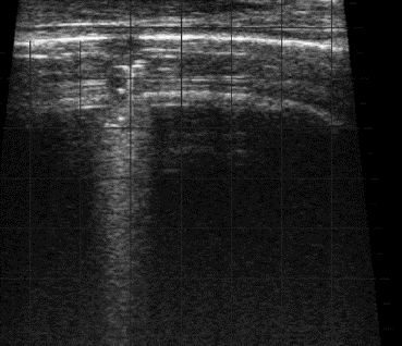 Lung lesion as detected by ultrasound