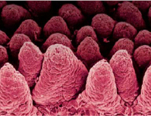 Neonatal Calf Diarrhoea (NCD): Module 1 – Causes and impact