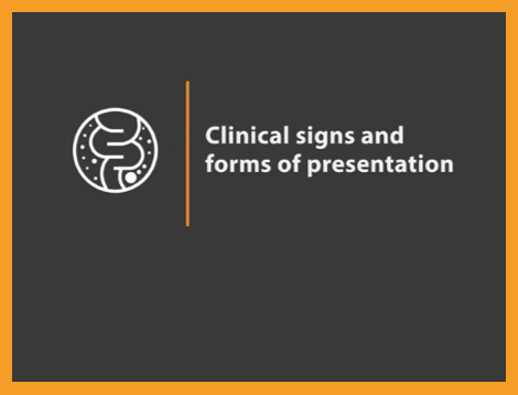 """Image of text """"Ileitis Clinical signs and forms of presentation"""" next to icon of intestines"""