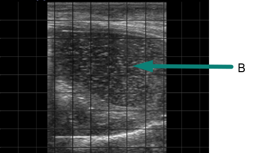 Ultrasound image showing lung tissue with severe lung lesion due to BRD
